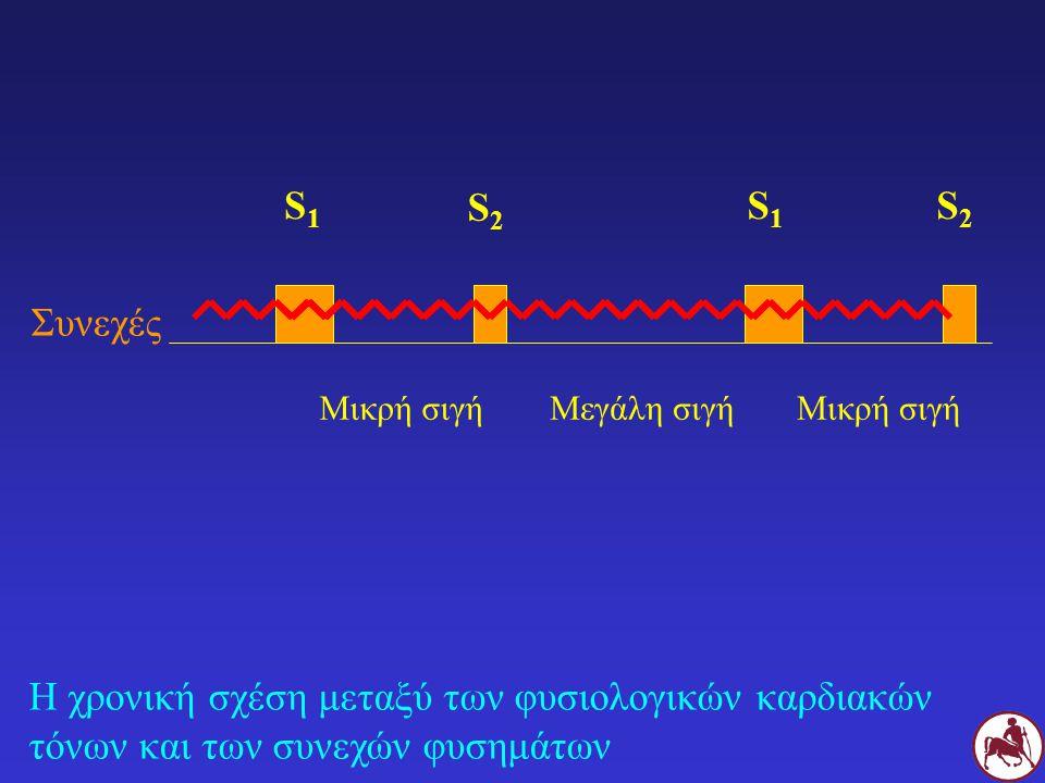 Η χρονική σχέση μεταξύ των φυσιολογικών καρδιακών τόνων και των συνεχών φυσημάτων Συνεχές S1S1 S2S2 S1S1 S2S2 Μικρή σιγήΜεγάλη σιγήΜικρή σιγή