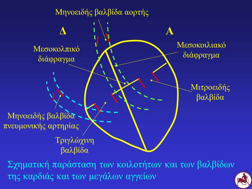 Σ Μηχανισμός παραγωγής συνεχούς φυσήματος σε Σ με παραμένοντα αρτηριακό πόρο Δ Α Δ Α