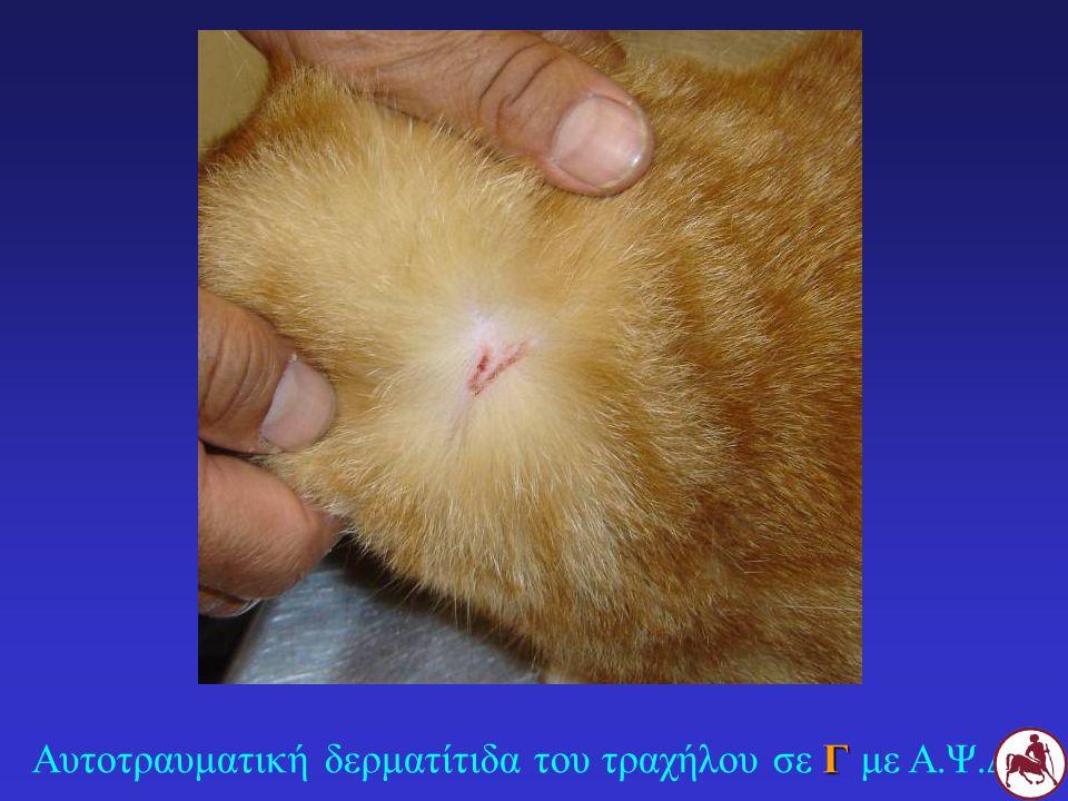 Γ Αυτοτραυματική δερματίτιδα του τραχήλου σε Γ με Α.Ψ.Δ.