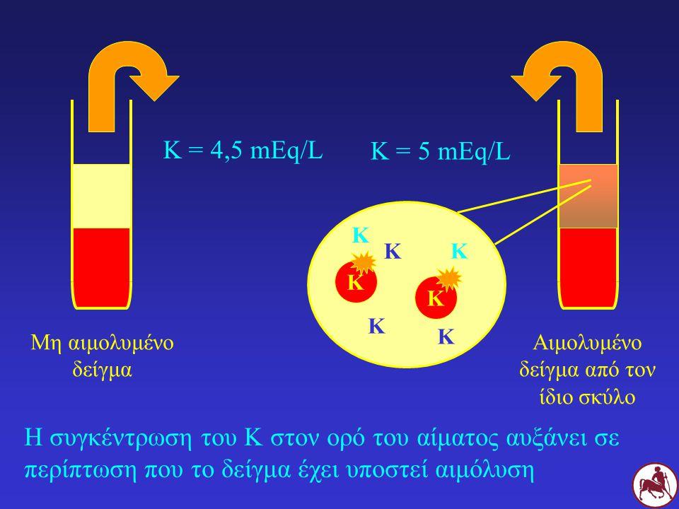 Η συγκέντρωση του Κ στον ορό του αίματος αυξάνει σε περίπτωση που το δείγμα έχει υποστεί αιμόλυση Κ = 4,5 mEq/L K K Μη αιμολυμένο δείγμα Αιμολυμένο δείγμα από τον ίδιο σκύλο Κ Κ Κ Κ Κ Κ = 5 mEq/L