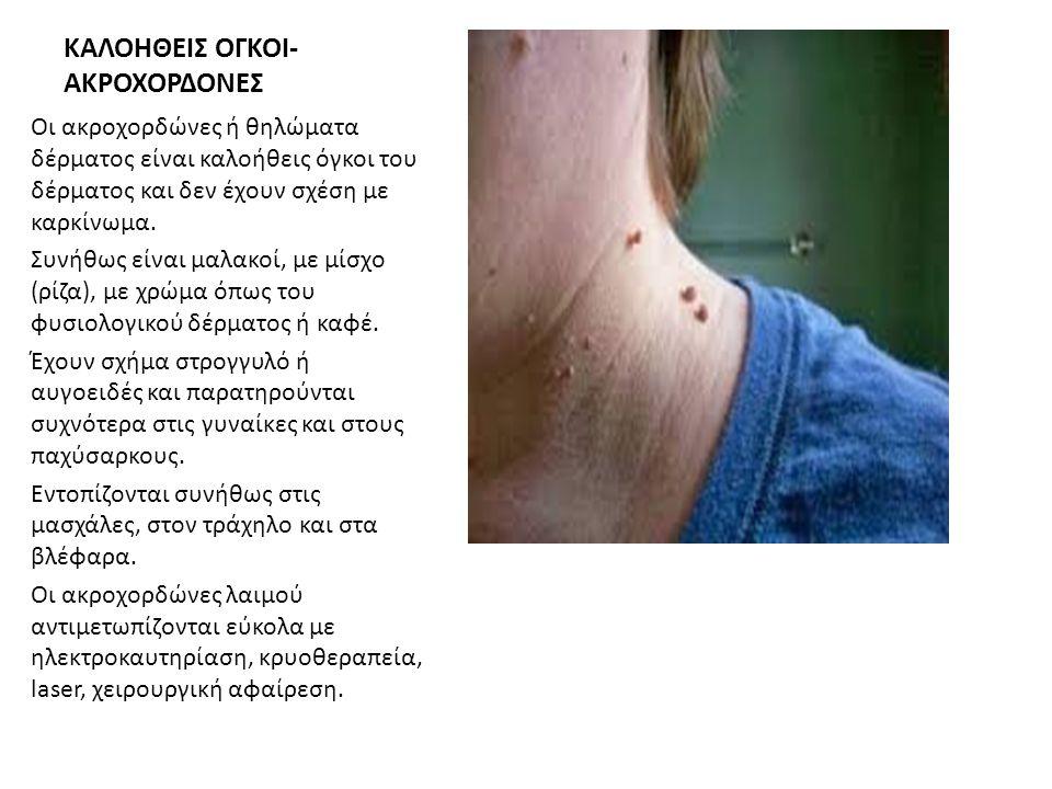 ΚΑΛΟΗΘΕΙΣ ΟΓΚΟΙ- ΑΚΡΟΧΟΡΔΟΝΕΣ Οι ακροχορδώνες ή θηλώματα δέρματος είναι καλοήθεις όγκοι του δέρματος και δεν έχουν σχέση με καρκίνωμα. Συνήθως είναι μ