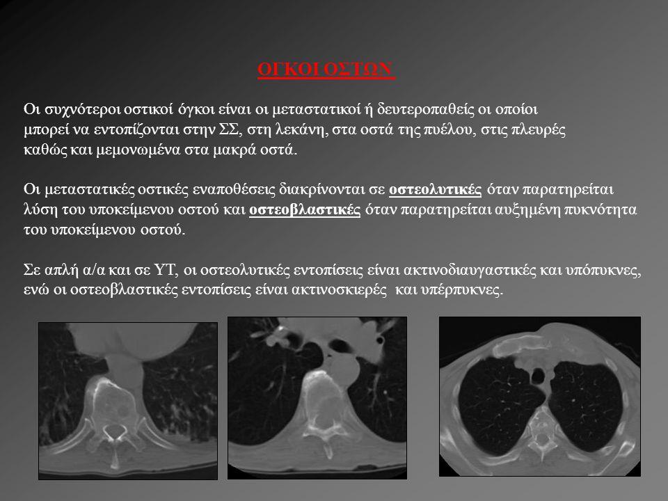 ΟΓΚΟΙ ΟΣΤΩΝ Οι συχνότεροι οστικοί όγκοι είναι οι μεταστατικοί ή δευτεροπαθείς οι οποίοι μπορεί να εντοπίζονται στην ΣΣ, στη λεκάνη, στα οστά της πυέλο