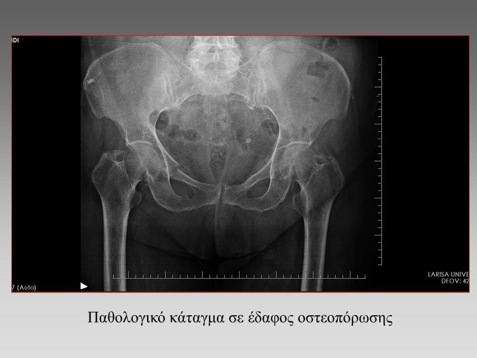 Παθολογικό κάταγμα σε έδαφος οστεοπόρωσης