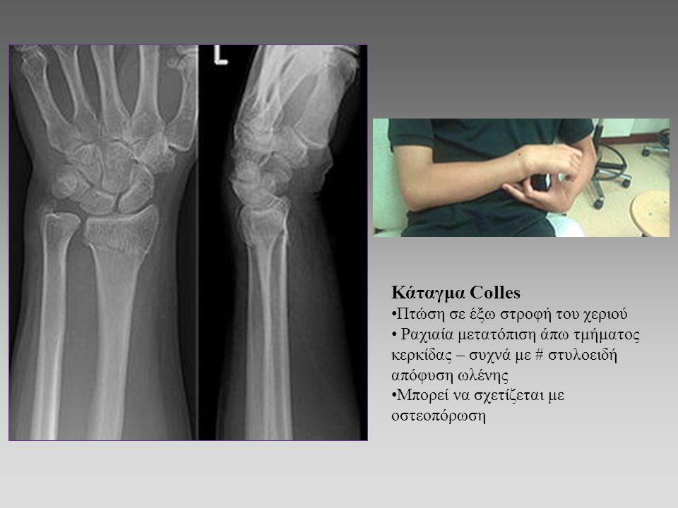 Κάταγμα Colles Πτώση σε έξω στροφή του χεριού Ραχιαία μετατόπιση άπω τμήματος κερκίδας – συχνά με # στυλοειδή απόφυση ωλένης Μπορεί να σχετίζεται με ο