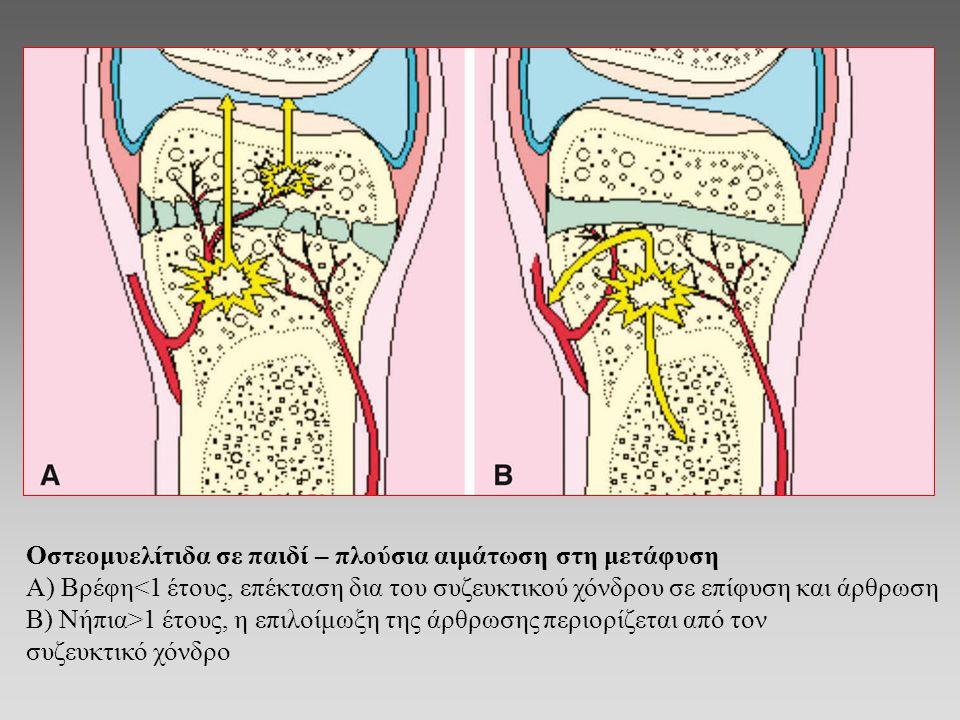 Οστεομυελίτιδα σε παιδί – πλούσια αιμάτωση στη μετάφυση Α) Βρέφη<1 έτους, επέκταση δια του συζευκτικού χόνδρου σε επίφυση και άρθρωση Β) Νήπια>1 έτους