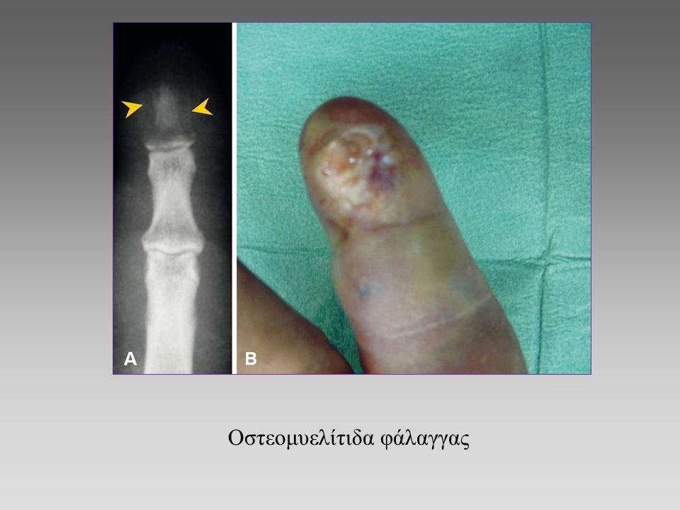 Οστεομυελίτιδα φάλαγγας