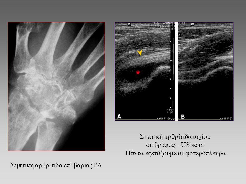 Σηπτική αρθρίτιδα επί βαριάς ΡΑ Σηπτική αρθρίτιδα ισχίου σε βρέφος – US scan Πάντα εξετάζουμε αμφοτερόπλευρα
