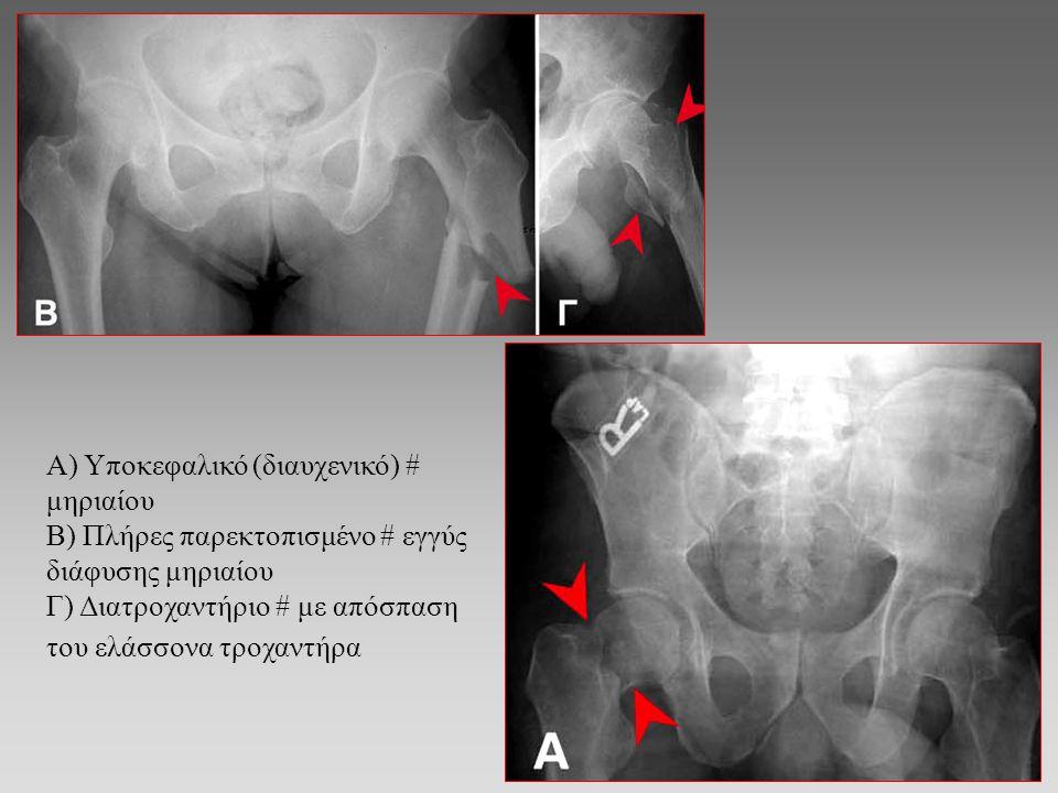 Κάταγμα Colles Πτώση σε έξω στροφή του χεριού Ραχιαία μετατόπιση άπω τμήματος κερκίδας – συχνά με # στυλοειδή απόφυση ωλένης Μπορεί να σχετίζεται με οστεοπόρωση
