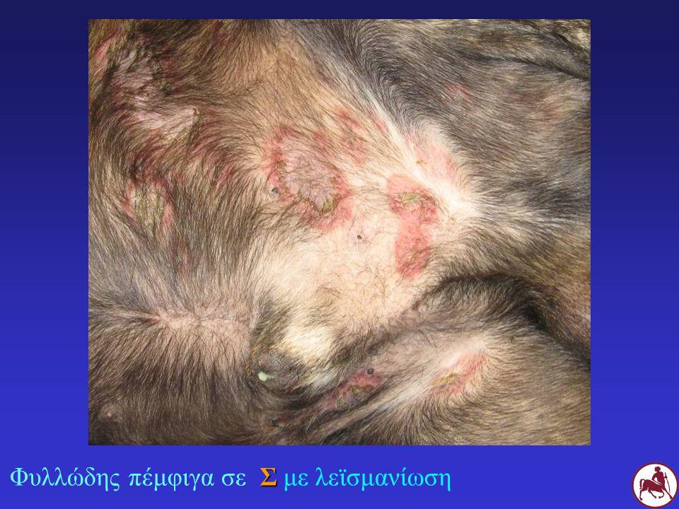 ΑΖΑΘΕΙΟΠΡΙΝΗ ΣΣέμετοι, διάρροια, παγκρεατίτιδα?, ηπατοτοξίκωση, καταστολή μυελού, αναιμία ΓΓλευκοπενία-θρομβοκυτταρτοπενίαθάνατος Έλλειψη ενζύμου ΤΡΜΤ Έλεγχος CBC κάθε 2 εβδομάδες ηπατικά-παγκρεατικά ένζυμα κάθε μήνα