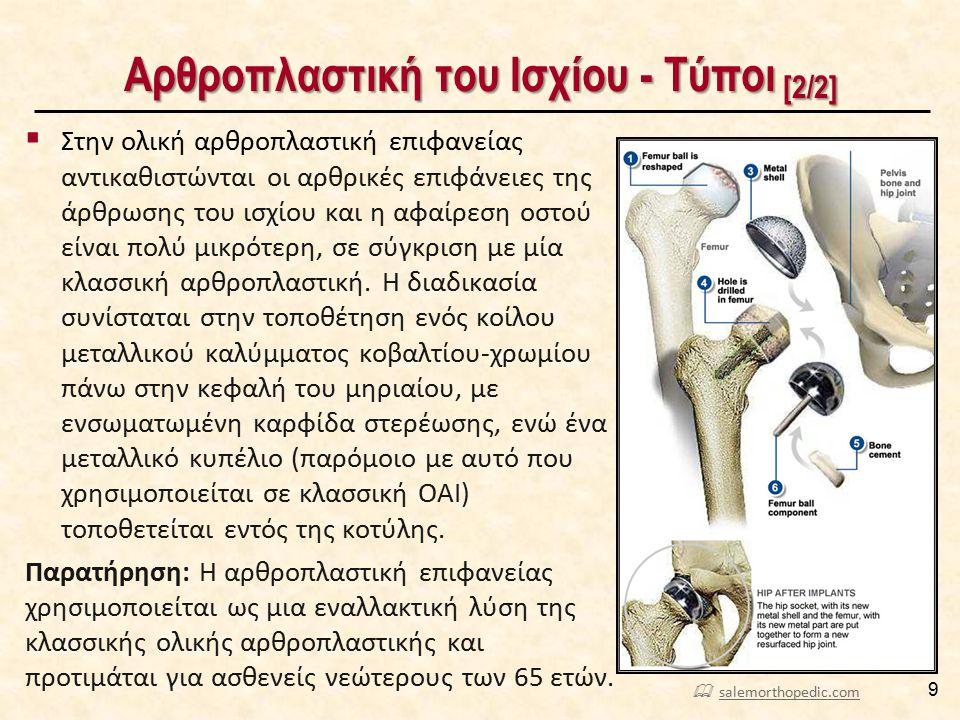 Αρθροπλαστική του Ισχίου - Τύποι [2/2] 9  Στην ολική αρθροπλαστική επιφανείας αντικαθιστώνται οι αρθρικές επιφάνειες της άρθρωσης του ισχίου και η αφ