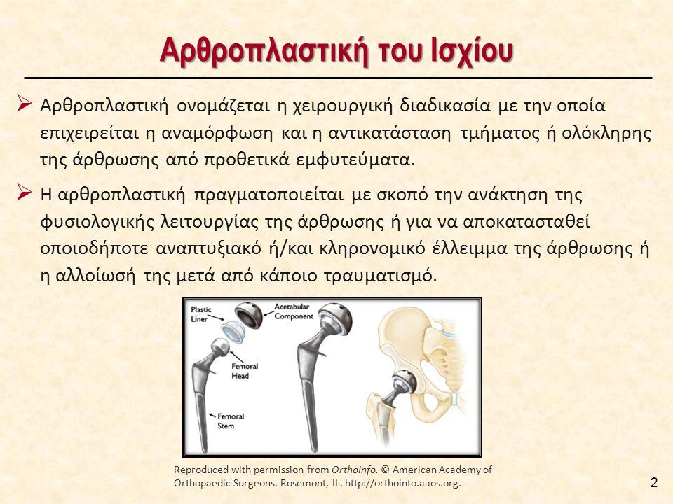 Αρθροπλαστική του Ισχίου 2  Αρθροπλαστική ονομάζεται η χειρουργική διαδικασία με την οποία επιχειρείται η αναμόρφωση και η αντικατάσταση τμήματος ή ο