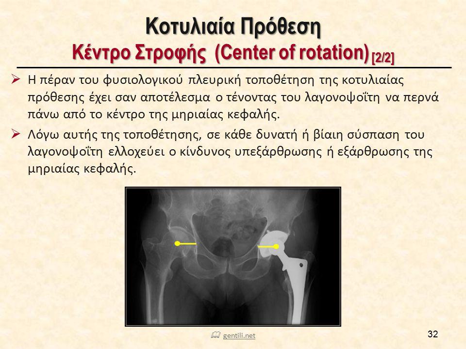 Κοτυλιαία Πρόθεση Κέντρο Στροφής (Center of rotation) [2/2]  Η πέραν του φυσιολογικού πλευρική τοποθέτηση της κοτυλιαίας πρόθεσης έχει σαν αποτέλεσμα