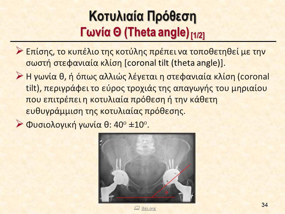Κοτυλιαία Πρόθεση Γωνία Θ (Theta angle) [1/2] 34  Επίσης, το κυπέλιο της κοτύλης πρέπει να τοποθετηθεί με την σωστή στεφανιαία κλίση [coronal tilt (t