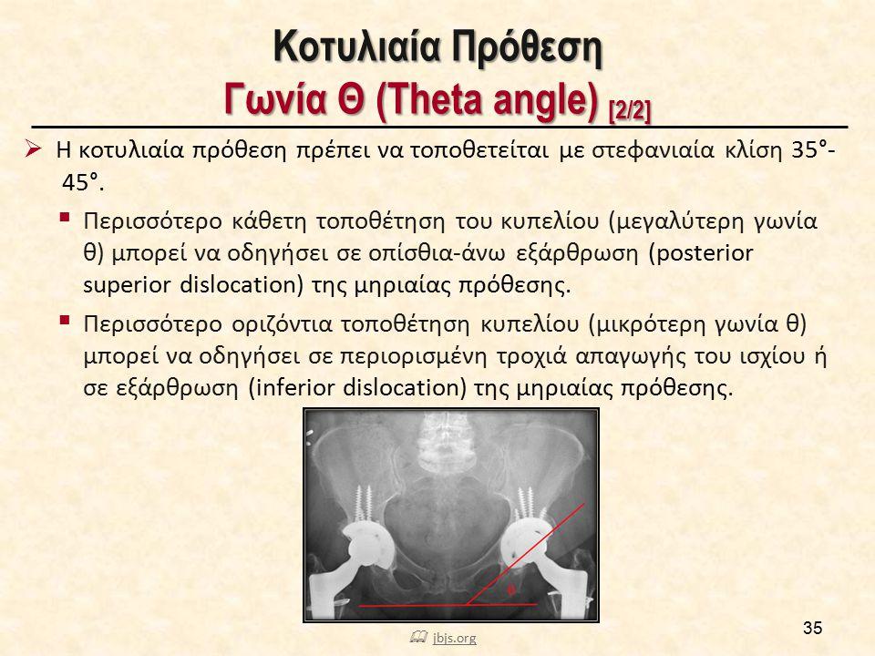 Κοτυλιαία Πρόθεση Γωνία Θ (Theta angle) [2/2] 35  Η κοτυλιαία πρόθεση πρέπει να τοποθετείται με στεφανιαία κλίση 35°- 45°.  Περισσότερο κάθετη τοποθ