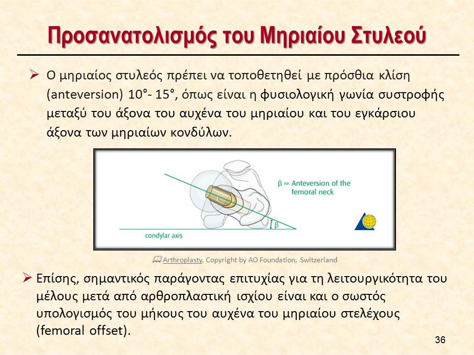 Προσανατολισμός του Μηριαίου Στυλεού  Ο μηριαίος στυλεός πρέπει να τοποθετηθεί με πρόσθια κλίση (anteversion) 10°- 15°, όπως είναι η φυσιολογική γωνί