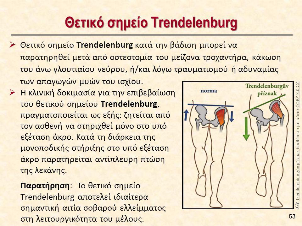 Θετικό σημείο Τrendelenburg 53  Η κλινική δοκιμασία για την επιβεβαίωση του θετικού σημείου Τrendelenburg, πραγματοποιείται ως εξής: ζητείται από τον