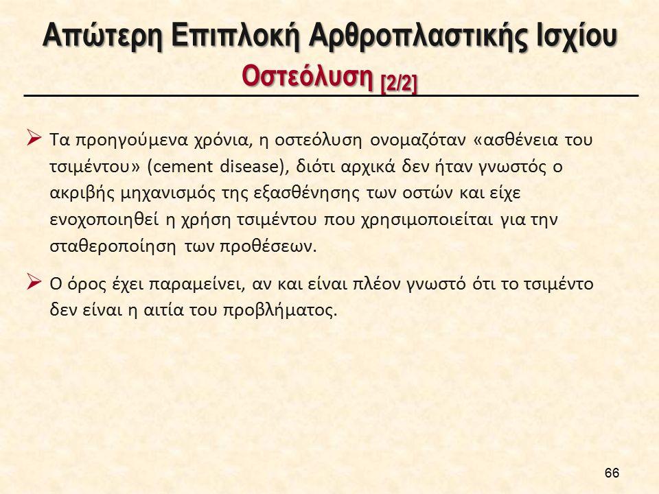 Απώτερη Επιπλοκή Αρθροπλαστικής Ισχίου Οστεόλυση [2/2]  Τα προηγούμενα χρόνια, η οστεόλυση ονομαζόταν «ασθένεια του τσιμέντου» (cement disease), διότ
