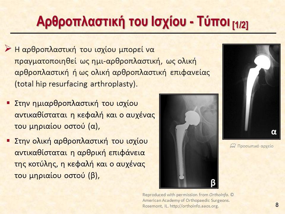 Αρθροπλαστική του Ισχίου - Τύποι [1/2] 8  Η αρθροπλαστική του ισχίου μπορεί να πραγματοποιηθεί ως ημι-αρθροπλαστική, ως ολική αρθροπλαστική ή ως ολικ