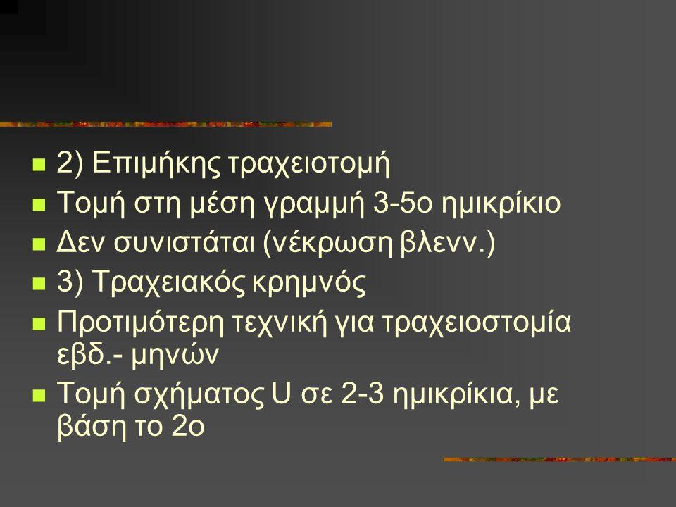 2) Επιμήκης τραχειοτομή Τομή στη μέση γραμμή 3-5ο ημικρίκιο Δεν συνιστάται (νέκρωση βλενν.) 3) Τραχειακός κρημνός Προτιμότερη τεχνική για τραχειοστομί