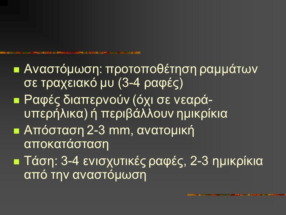 Αναστόμωση: προτοποθέτηση ραμμάτων σε τραχειακό μυ (3-4 ραφές) Ραφές διαπερνούν (όχι σε νεαρά- υπερήλικα) ή περιβάλλουν ημικρίκια Απόσταση 2-3 mm, ανα