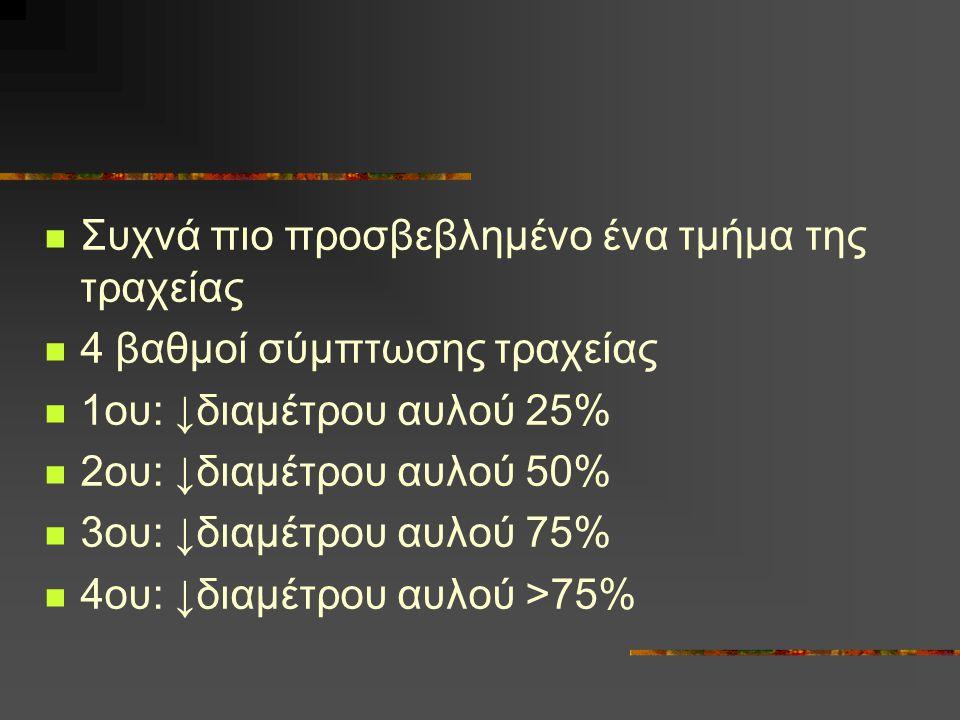 Συχνά πιο προσβεβλημένο ένα τμήμα της τραχείας 4 βαθμοί σύμπτωσης τραχείας 1ου: ↓διαμέτρου αυλού 25% 2ου: ↓διαμέτρου αυλού 50% 3ου: ↓διαμέτρου αυλού 7