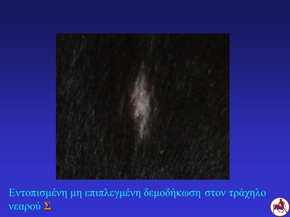 Σ Γενικευμένη μη επιπλεγμένη δεμοδήκωση σε ενήλικο Σ πριν (αριστερά) και μετά από 1,5 μήνα θεραπείας με μιλμπεμυκίνη (δεξιά)
