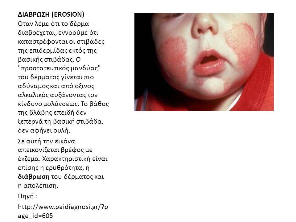 ΔΙΑΒΡΩΣΗ (EROSION) Όταν λέμε ότι το δέρμα διαβρέχεται, εννοούμε ότι καταστρέφονται οι στιβάδες της επιδερμίδας εκτός της βασικής στιβάδας. Ο