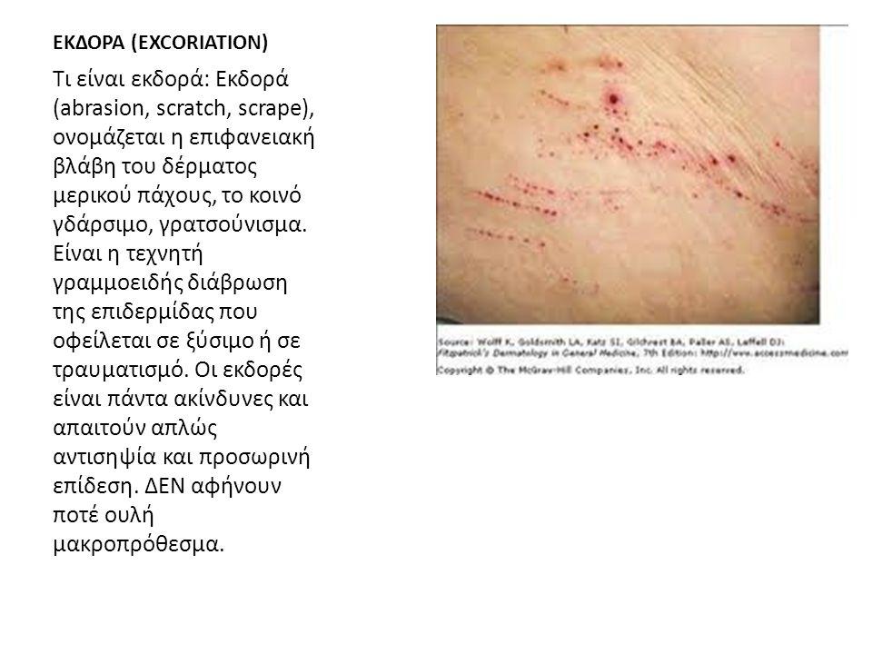 ΕΚΔΟΡΑ (EXCORIATION) Τι είναι εκδορά: Εκδορά (abrasion, scratch, scrape), ονομάζεται η επιφανειακή βλάβη του δέρματος μερικού πάχους, το κοινό γδάρσιμ