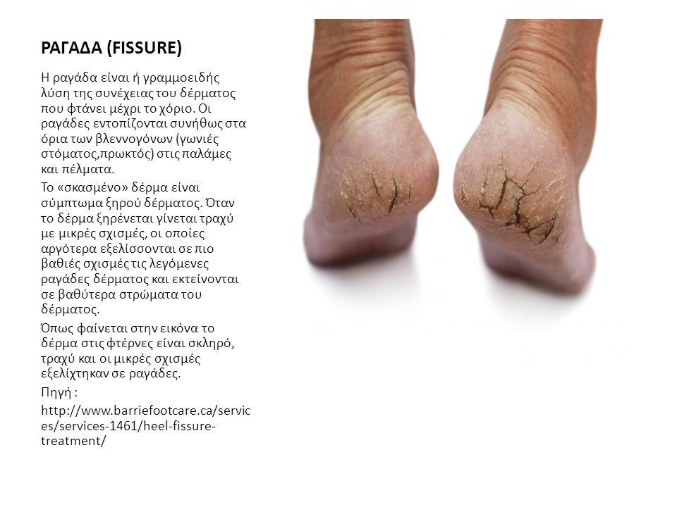 ΡΑΓΑΔΑ (FISSURE) Η ραγάδα είναι ή γραμμοειδής λύση της συνέχειας του δέρματος που φτάνει μέχρι το χόριο. Οι ραγάδες εντοπίζονται συνήθως στα όρια των