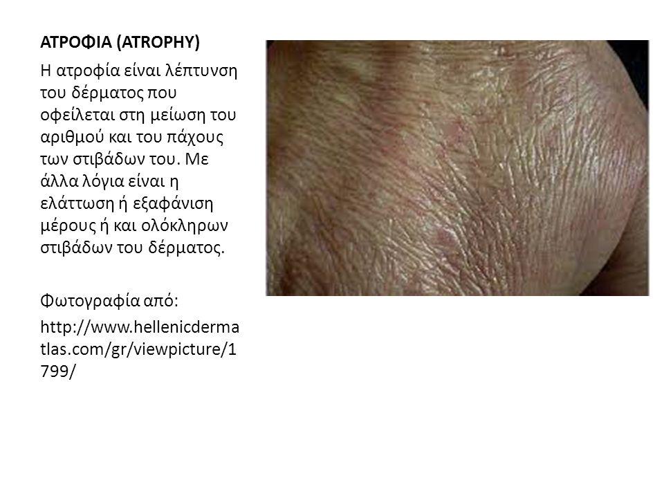 ΑΤΡΟΦΙΑ (ATROPHY) Η ατροφία είναι λέπτυνση του δέρματος που οφείλεται στη μείωση του αριθμού και του πάχους των στιβάδων του. Με άλλα λόγια είναι η ελ