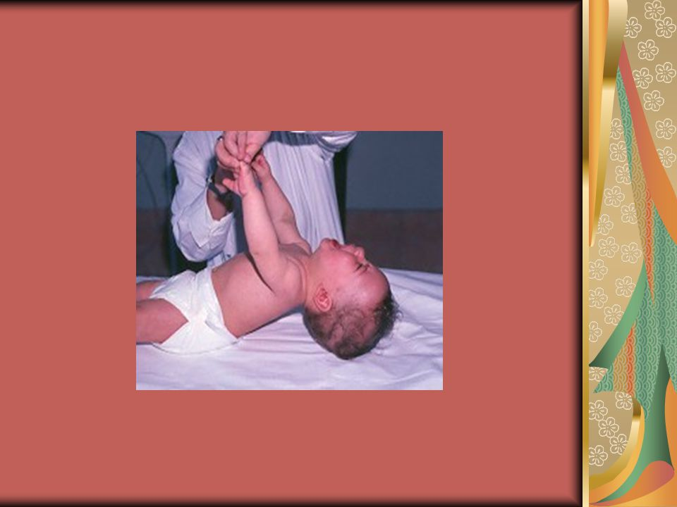 Κώστας, 5 ετών Στη βρεφική ηλικία δυσκολίες σίτισης- υποτονία Κρυψορχία στους άρρενες Παχυσαρκία- βουλιμία (κοντά χέρια και πόδια Εκρήξεις θυμού