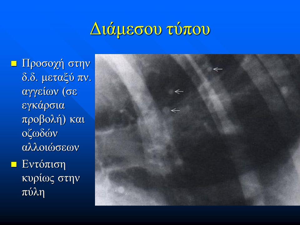 Διάμεσου τύπου Προσοχή στην δ.δ. μεταξύ πν. αγγείων (σε εγκάρσια προβολή) και οζωδών αλλοιώσεων Προσοχή στην δ.δ. μεταξύ πν. αγγείων (σε εγκάρσια προβ