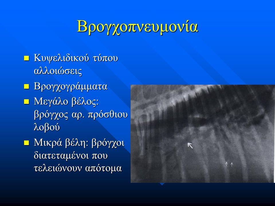 Βρογχοπνευμονία Κυψελιδικού τύπου αλλοιώσεις Κυψελιδικού τύπου αλλοιώσεις Βρογχογράμματα Βρογχογράμματα Μεγάλο βέλος: βρόγχος αρ. πρόσθιου λοβού Μεγάλ