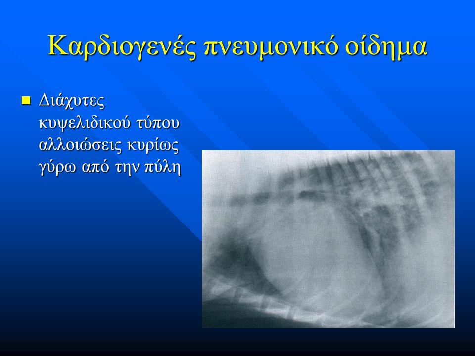 Καρδιογενές πνευμονικό οίδημα Διάχυτες κυψελιδικού τύπου αλλοιώσεις κυρίως γύρω από την πύλη Διάχυτες κυψελιδικού τύπου αλλοιώσεις κυρίως γύρω από την