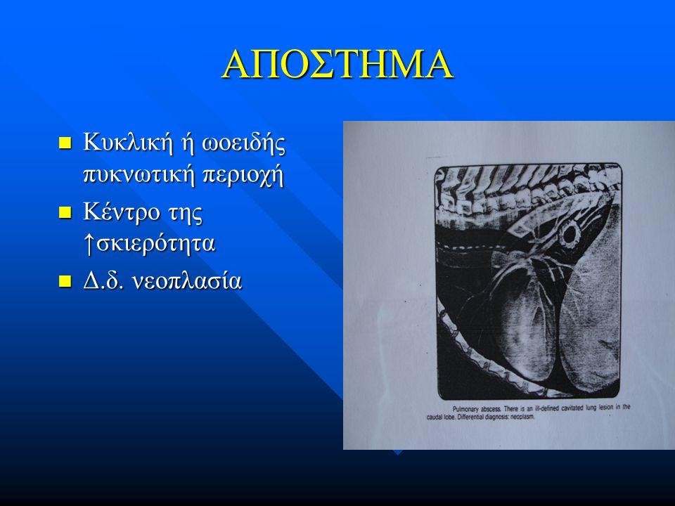 ΑΠΟΣΤΗΜΑ Κυκλική ή ωοειδής πυκνωτική περιοχή Κυκλική ή ωοειδής πυκνωτική περιοχή Κέντρο της ↑σκιερότητα Κέντρο της ↑σκιερότητα Δ.δ. νεοπλασία Δ.δ. νεο