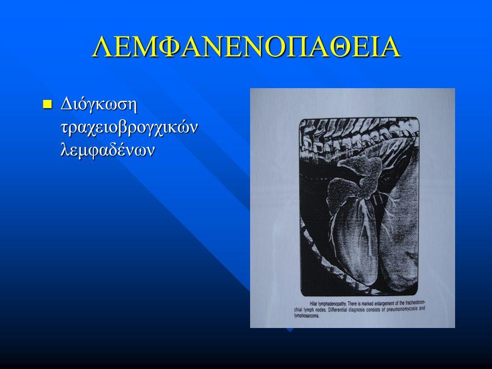 ΛΕΜΦΑΝΕΝΟΠΑΘΕΙΑ Διόγκωση τραχειοβρογχικών λεμφαδένων Διόγκωση τραχειοβρογχικών λεμφαδένων