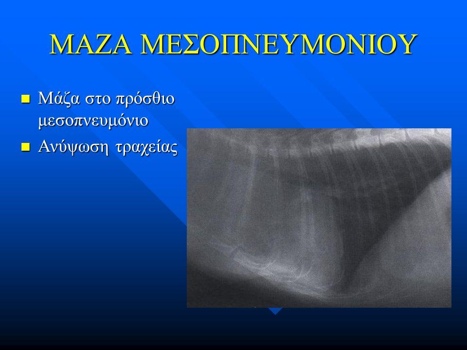 ΜΑΖΑ ΜΕΣΟΠΝΕΥΜΟΝΙΟΥ Μάζα στο πρόσθιο μεσοπνευμόνιο Μάζα στο πρόσθιο μεσοπνευμόνιο Ανύψωση τραχείας Ανύψωση τραχείας