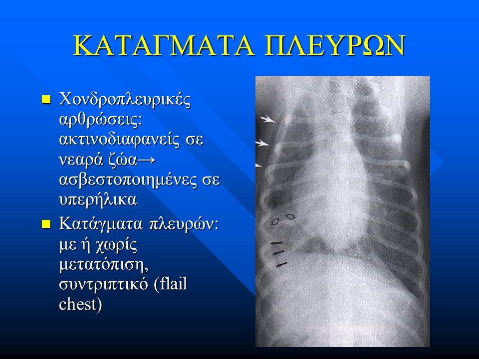 ΚΑΤΑΓΜΑΤΑ ΠΛΕΥΡΩΝ Χονδροπλευρικές αρθρώσεις: ακτινοδιαφανείς σε νεαρά ζώα→ ασβεστοποιημένες σε υπερήλικα Χονδροπλευρικές αρθρώσεις: ακτινοδιαφανείς σε
