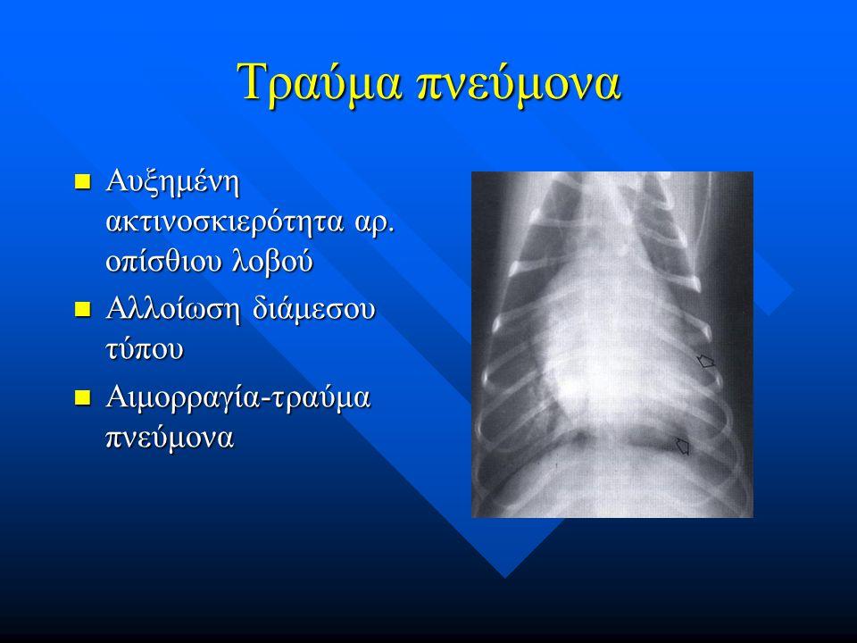 Τραύμα πνεύμονα Αυξημένη ακτινοσκιερότητα αρ. οπίσθιου λοβού Αυξημένη ακτινοσκιερότητα αρ. οπίσθιου λοβού Αλλοίωση διάμεσου τύπου Αλλοίωση διάμεσου τύ