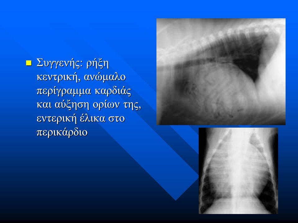 Συγγενής: ρήξη κεντρική, ανώμαλο περίγραμμα καρδιάς και αύξηση ορίων της, εντερική έλικα στο περικάρδιο Συγγενής: ρήξη κεντρική, ανώμαλο περίγραμμα κα