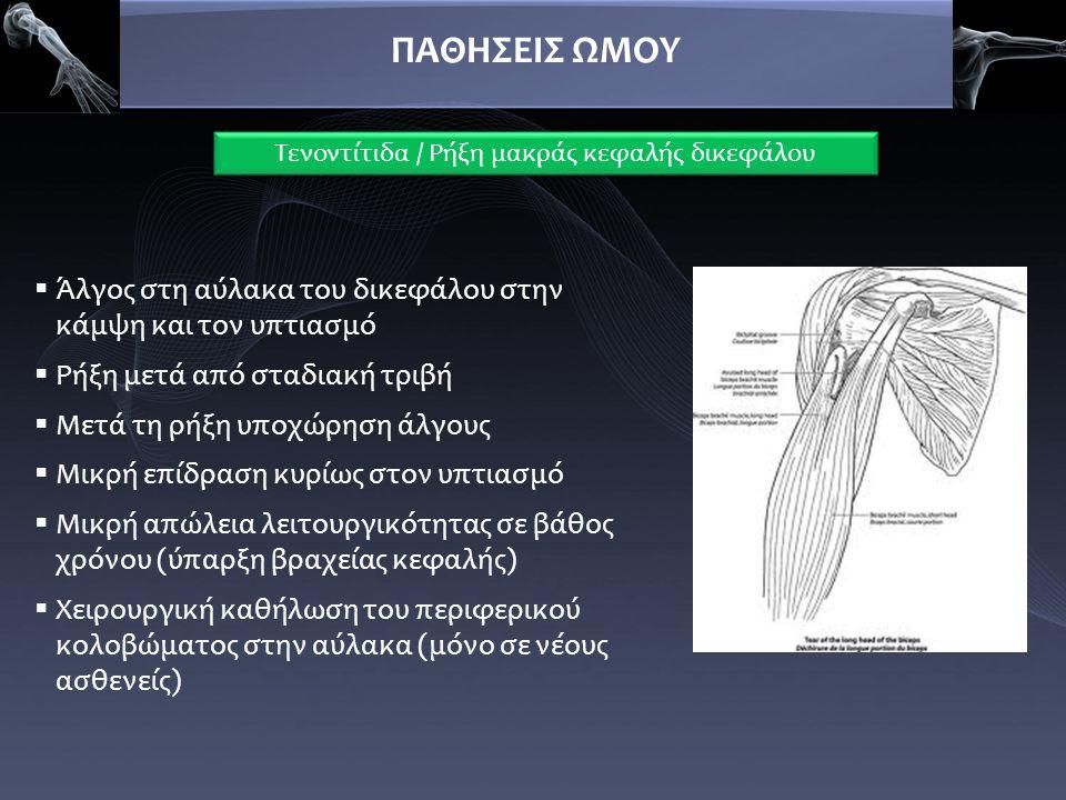 ΠΑΘΗΣΕΙΣ ΩΜΟΥ Τενοντίτιδα / Ρήξη μακράς κεφαλής δικεφάλου  Άλγος στη αύλακα του δικεφάλου στην κάμψη και τον υπτιασμό  Ρήξη μετά από σταδιακή τριβή