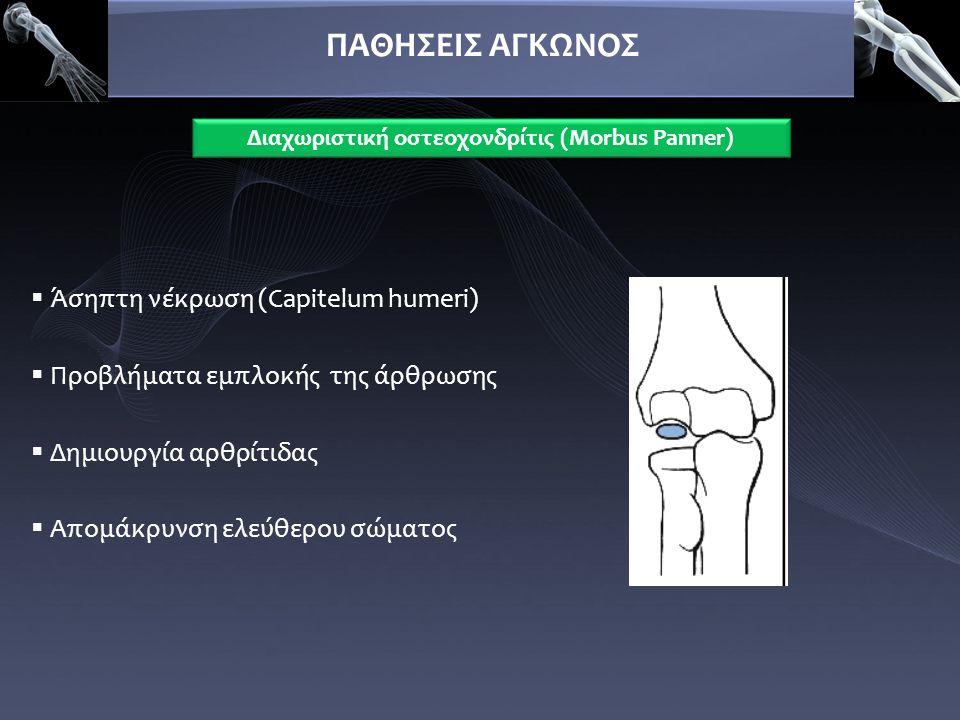  Άσηπτη νέκρωση (Capitelum humeri)  Προβλήματα εμπλοκής της άρθρωσης  Δημιουργία αρθρίτιδας  Απομάκρυνση ελεύθερου σώματος ΠΑΘΗΣΕΙΣ ΑΓΚΩΝΟΣ Διαχωρ