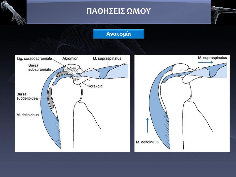 ΠΑΘΗΣΕΙΣ ΩΜΟΥ  Ίνωση – σύμφυση στον υπακρωμιακό χώρο  Πιθανή κάκωση ΣΠ (μη αντιρρόπηση της δράσης του δελτοειδούς)  Μετακίνηση της κεφαλής προς τα πάνω  Περιορισμός απαγωγής και στροφής (ενεργητική και παθητική κίνηση)  Ατροφία ανενεργών μυών ΣΠ  Περαιτέρω περιορισμός κίνησης  δδ από παγωμένο ώμο Συμφυτική περιαρθρίτιδα