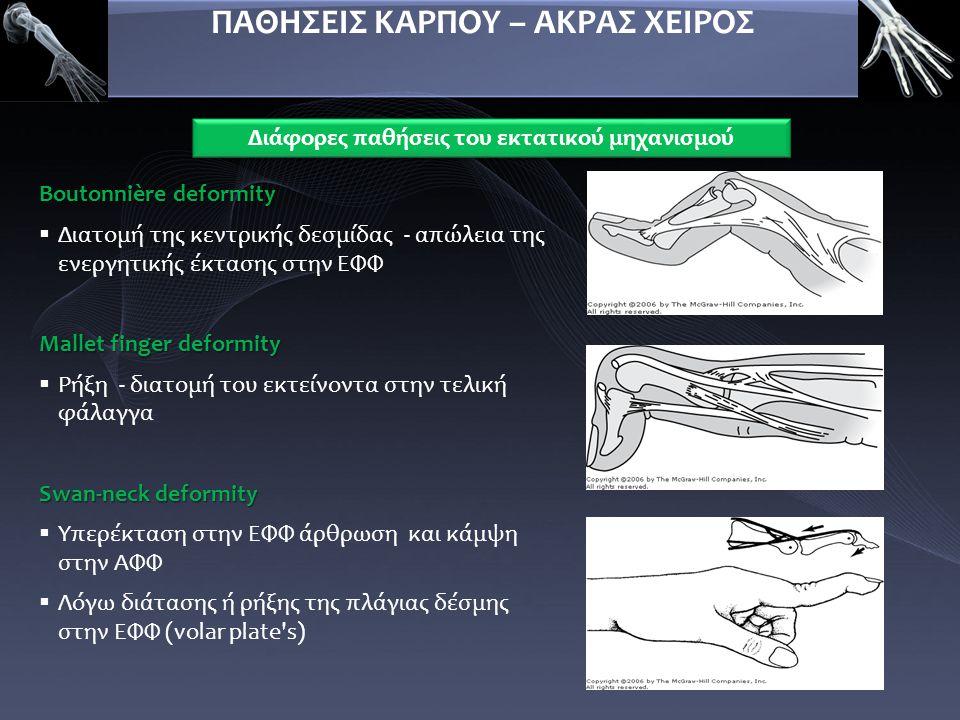 Boutonnière deformity  Διατομή της κεντρικής δεσμίδας - απώλεια της ενεργητικής έκτασης στην ΕΦΦ Mallet finger deformity  Ρήξη - διατομή του εκτείνο