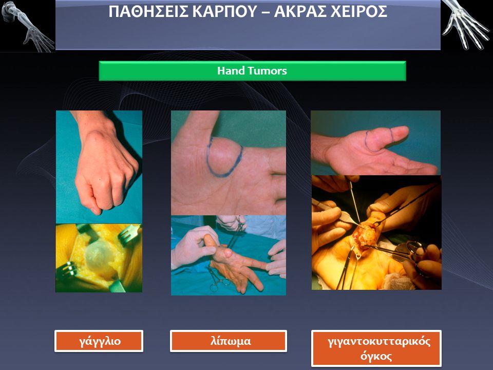 ΠΑΘΗΣΕΙΣ ΚΑΡΠΟΥ – ΑΚΡΑΣ ΧΕΙΡΟΣ Hand Tumors γάγγλιο λίπωμα γιγαντοκυτταρικός όγκος