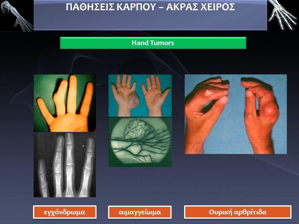 ΠΑΘΗΣΕΙΣ ΚΑΡΠΟΥ – ΑΚΡΑΣ ΧΕΙΡΟΣ Hand Tumors εγχόνδρωμα αιμαγγείωμα Ουρική αρθρίτιδα