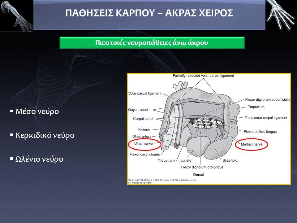  Μέσο νεύρο  Κερκιδικό νεύρο  Ωλένιο νεύρο ΠΑΘΗΣΕΙΣ ΚΑΡΠΟΥ – ΑΚΡΑΣ ΧΕΙΡΟΣ Πιεστικές νευροπάθειες άνω άκρου