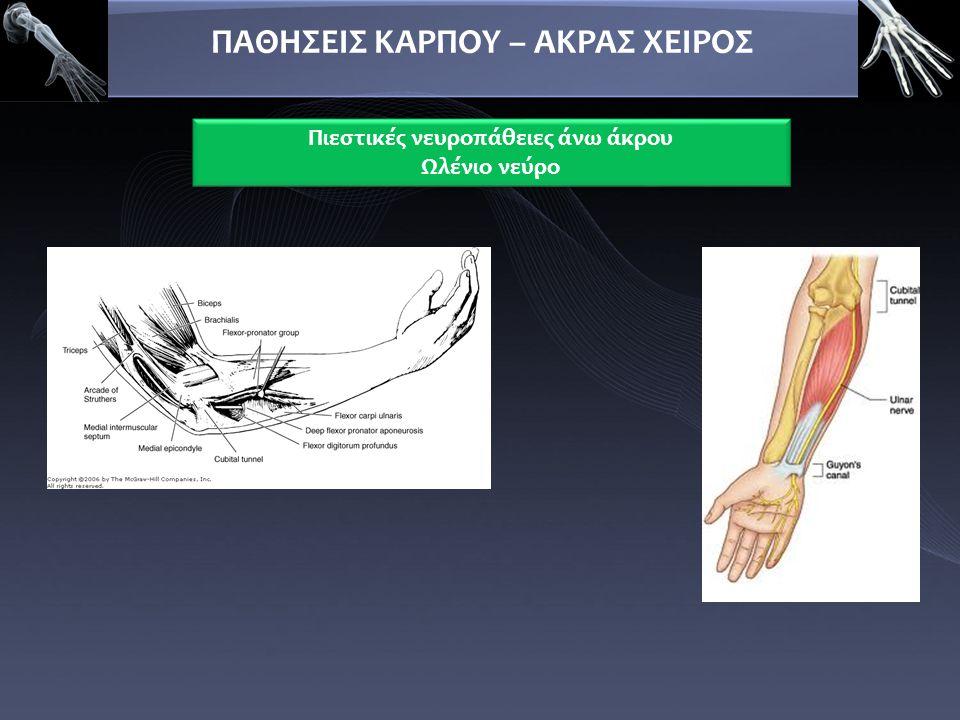 ΠΑΘΗΣΕΙΣ ΚΑΡΠΟΥ – ΑΚΡΑΣ ΧΕΙΡΟΣ Πιεστικές νευροπάθειες άνω άκρου Ωλένιο νεύρο Πιεστικές νευροπάθειες άνω άκρου Ωλένιο νεύρο