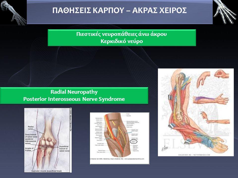 ΠΑΘΗΣΕΙΣ ΚΑΡΠΟΥ – ΑΚΡΑΣ ΧΕΙΡΟΣ Πιεστικές νευροπάθειες άνω άκρου Κερκιδικό νεύρο Πιεστικές νευροπάθειες άνω άκρου Κερκιδικό νεύρο Radial Neuropathy Pos