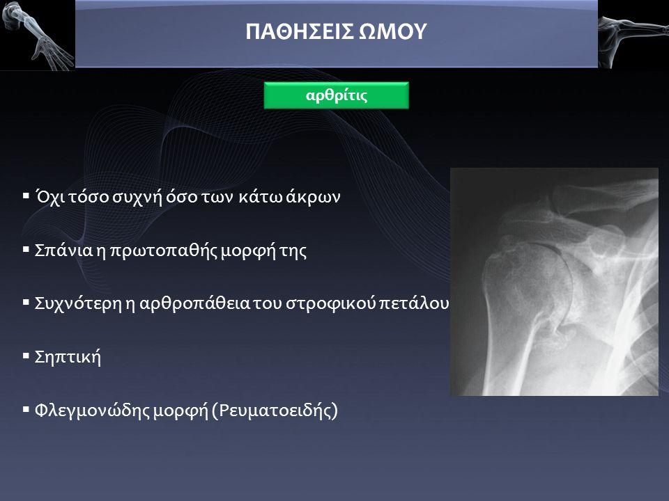 ΠΑΘΗΣΕΙΣ ΩΜΟΥ ΘΕΡΑΠΕΙΑ ΣΗΠΤΙΚΗ:  αντιβιοτική κάλυψη, χειρουργικός καθαρισμός και υμενεκτομή ΡΑ/ΟΑ:  Αρχικά συντηρητικά (φ/θ, εγχύσεις)  Αρθροπλαστική (με ακέραιο το RC)  Αρθρόδεση αρθρίτις